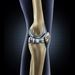 knee Implants